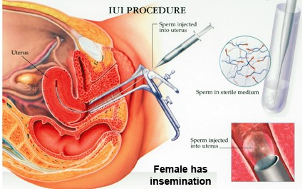 Treatment of Infertility by IUI Method